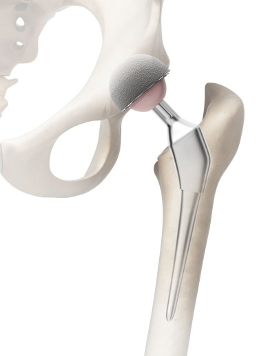 3d rendered illustration of a hip replacement